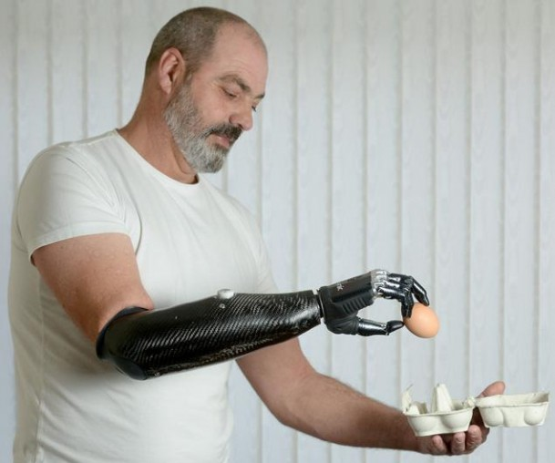 Nigel Auckland – Le premier homme équipé d'une prothèse de bras robotique