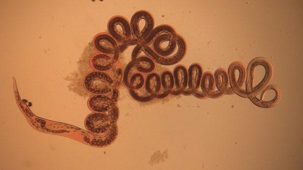 Comment les vers parasites peuvent nous aider avec l'obésité ou l'asthme