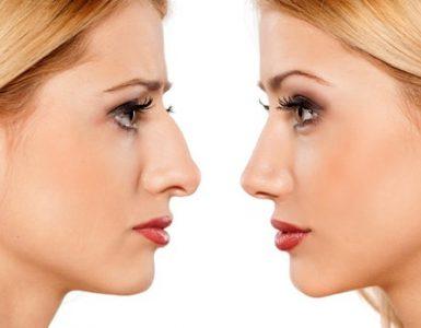La chirurgie moléculaire va-t-elle succéder à la chirurgie esthétique?